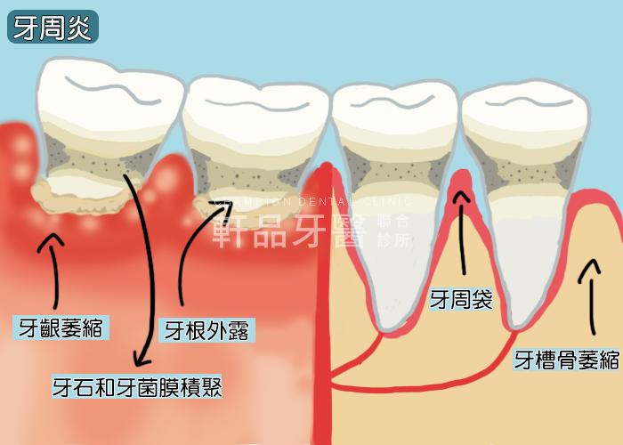 什麼是牙周病1-2